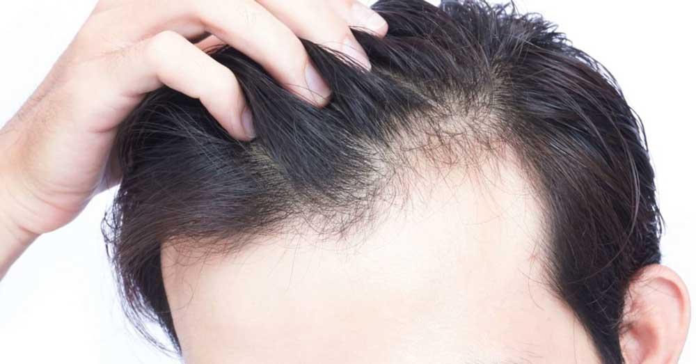 کاهش حجم مو