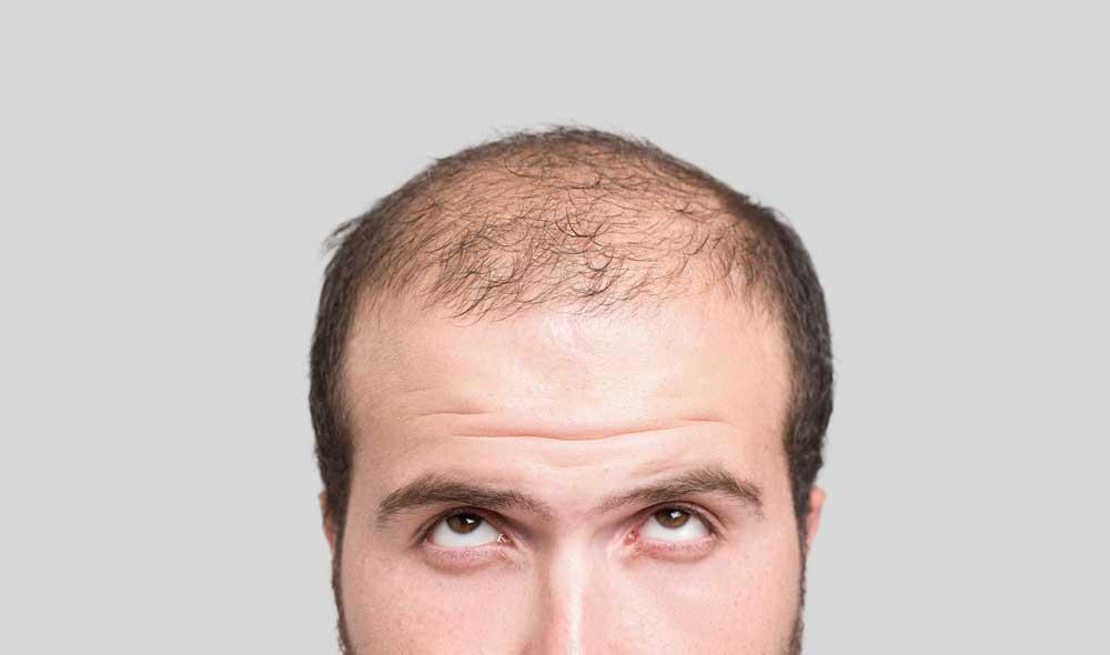علت کم پشت شدن مو در آقایان