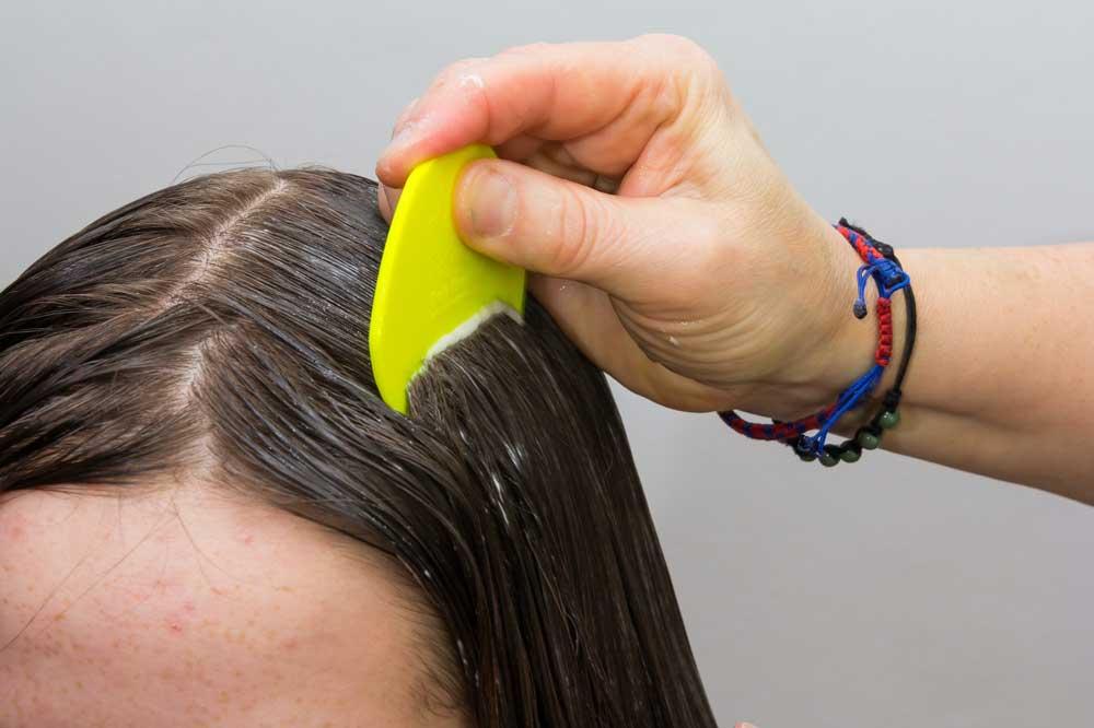 از بین بردن شپش موی سر