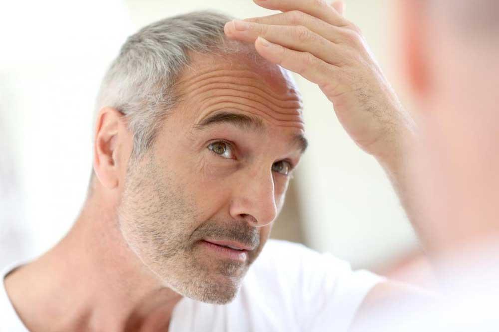 ریزش مو بر اثر بالا رفتن سن