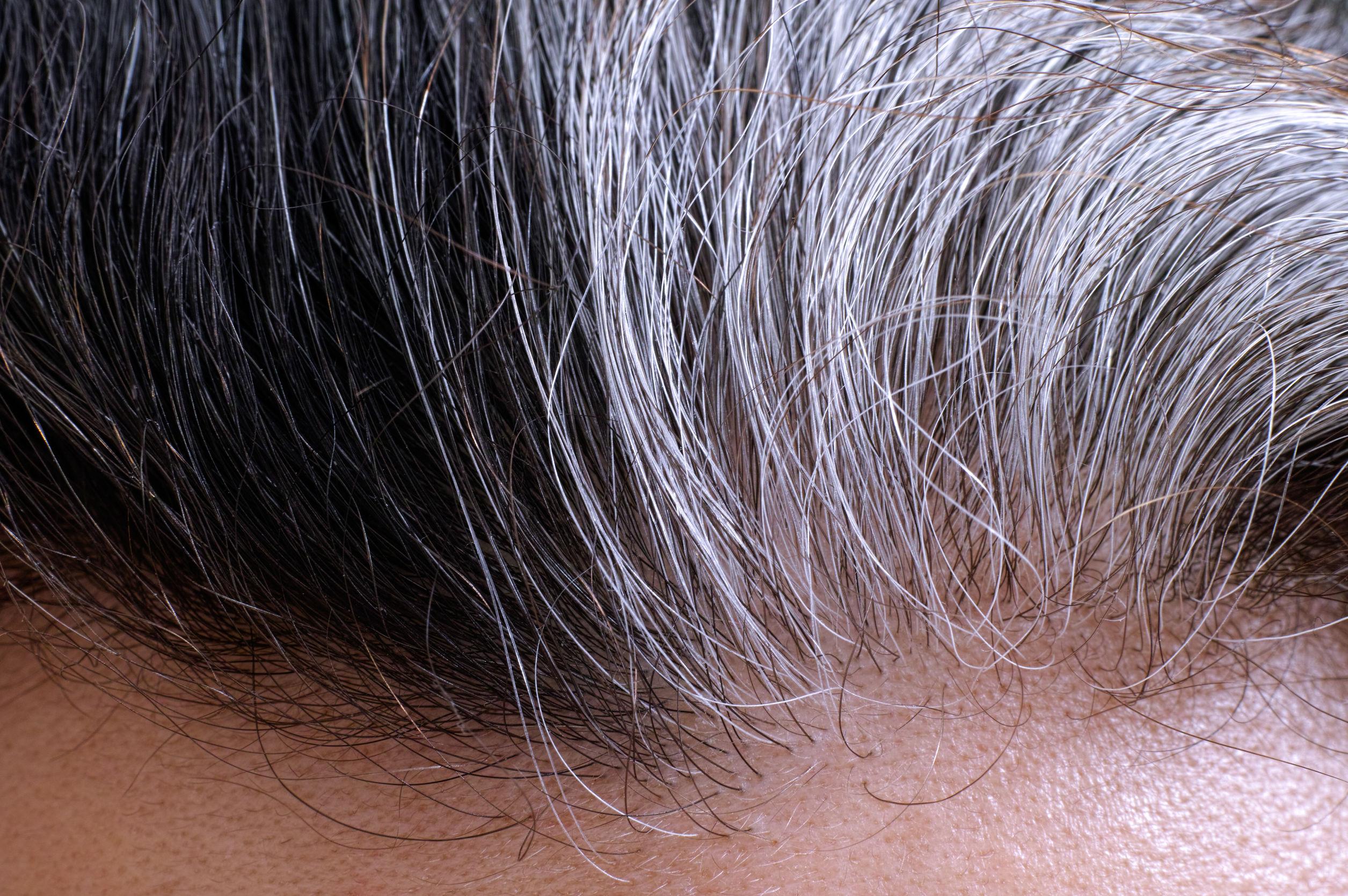 دلایل سفید شدن مو در جوانان