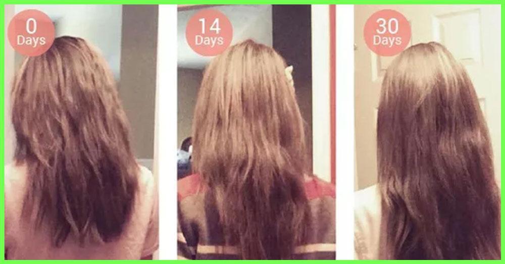 راه های افزایش رشد مو