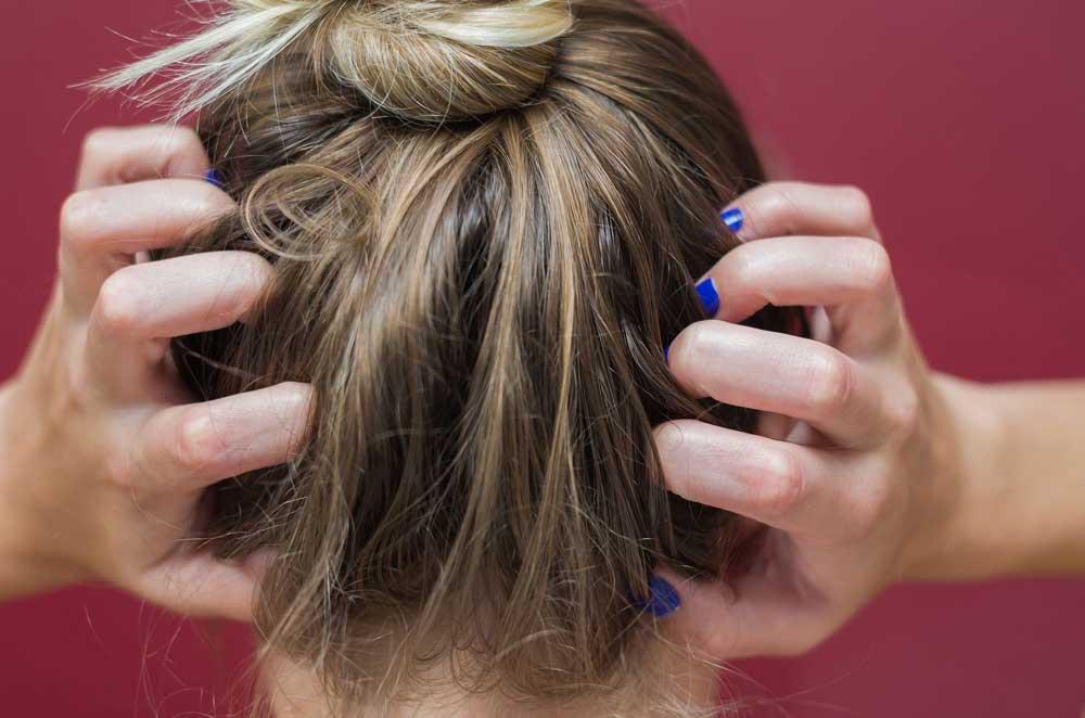 درمان های رایج برای خارش کف سر