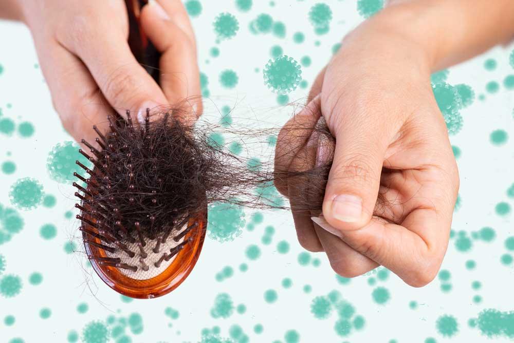 ریزش موی شدید در کرونا