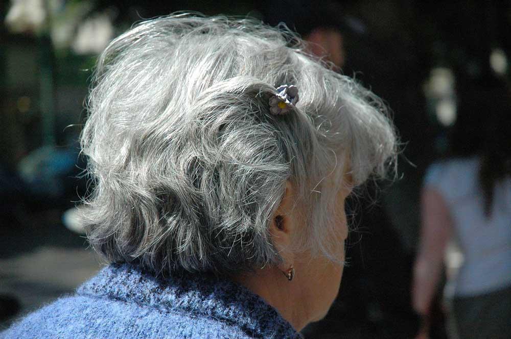 افزایش موخوره در موی سفید