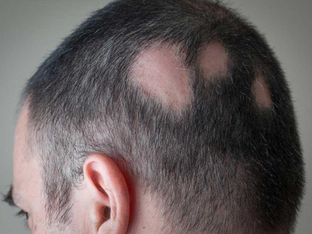 ریزش موی سکه ای