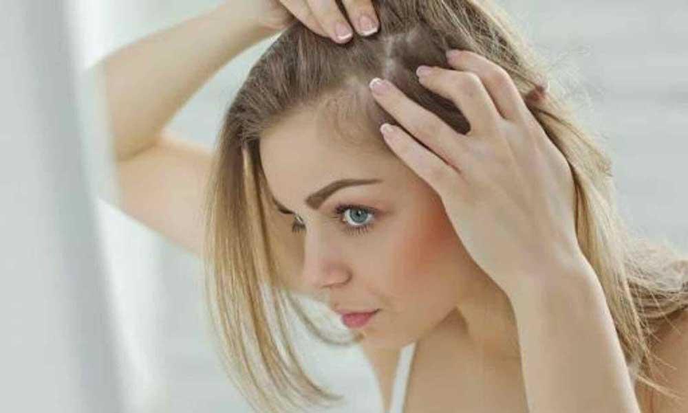 ریزش موی سکه ای چیست؟
