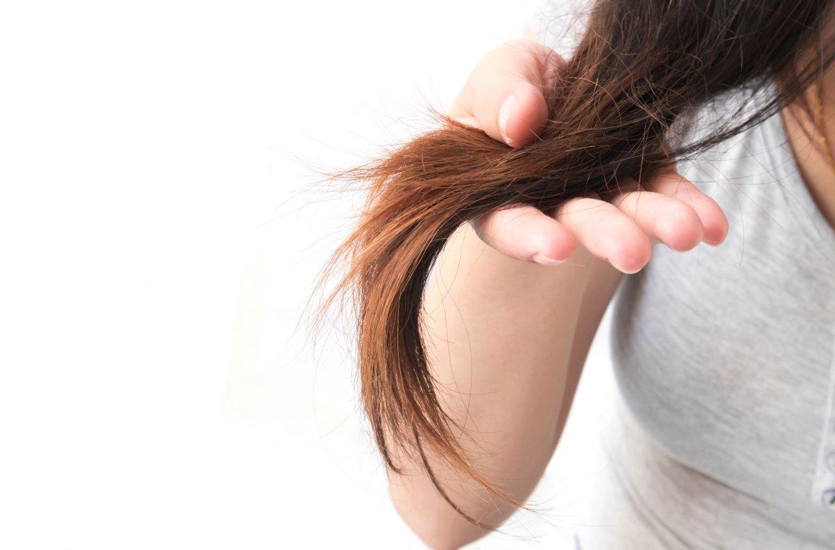 موخوره علت وز شدن مو