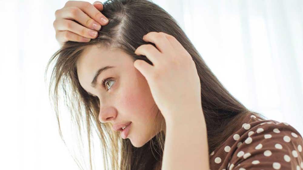 استرس و ریزش مو