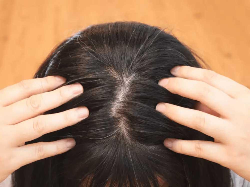کاهش تراکم مو در نوجوانی