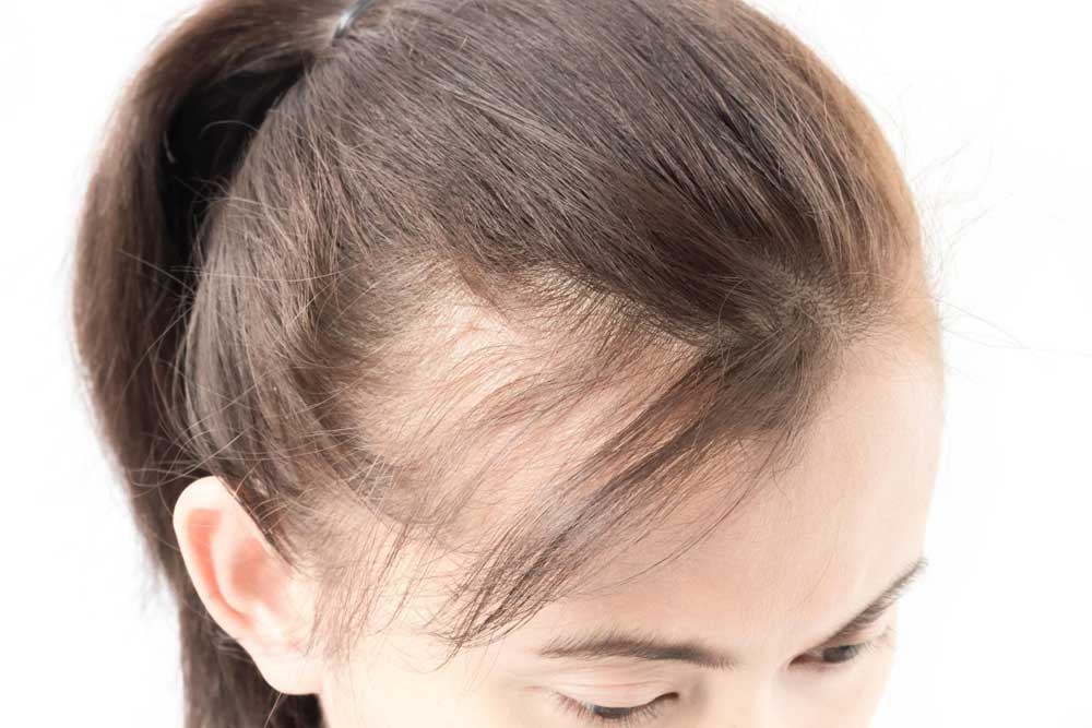 درمان موی ولوس