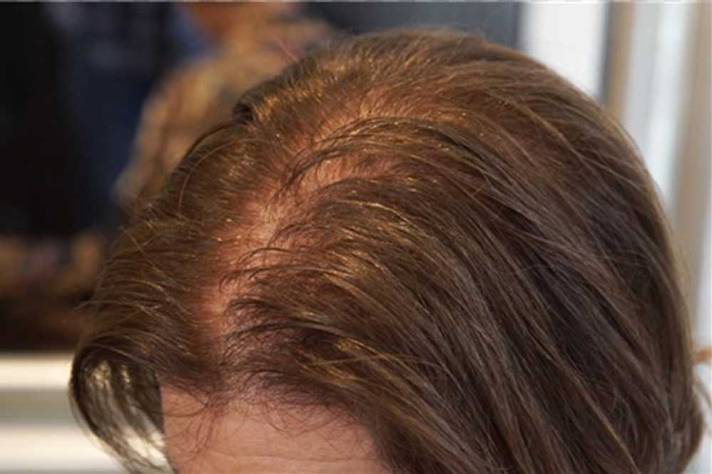علت کاهش ضخامت موها