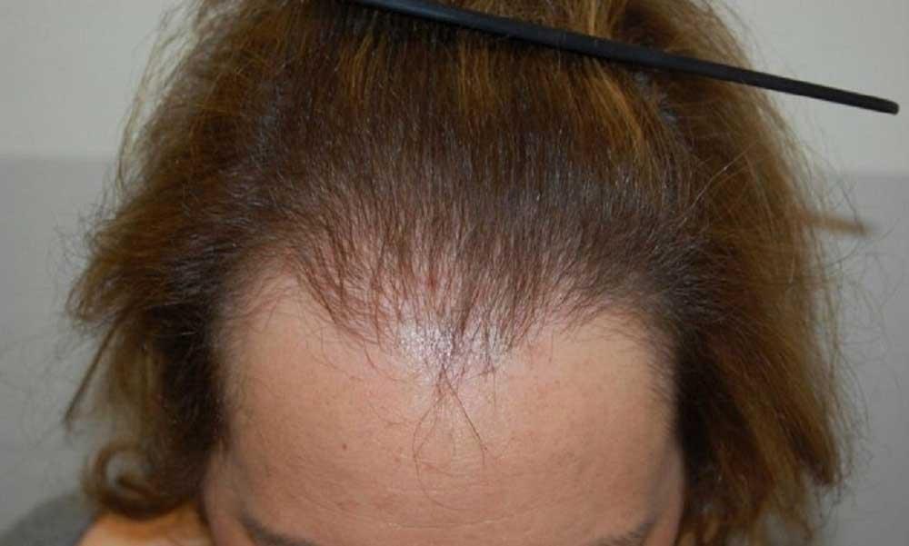 تاثیر هورمون انسولین در ریزش مو