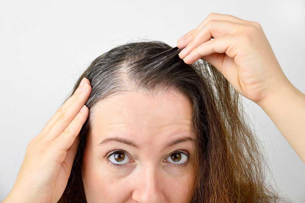 تاثیر هورمون جنسی روی ریزش موها