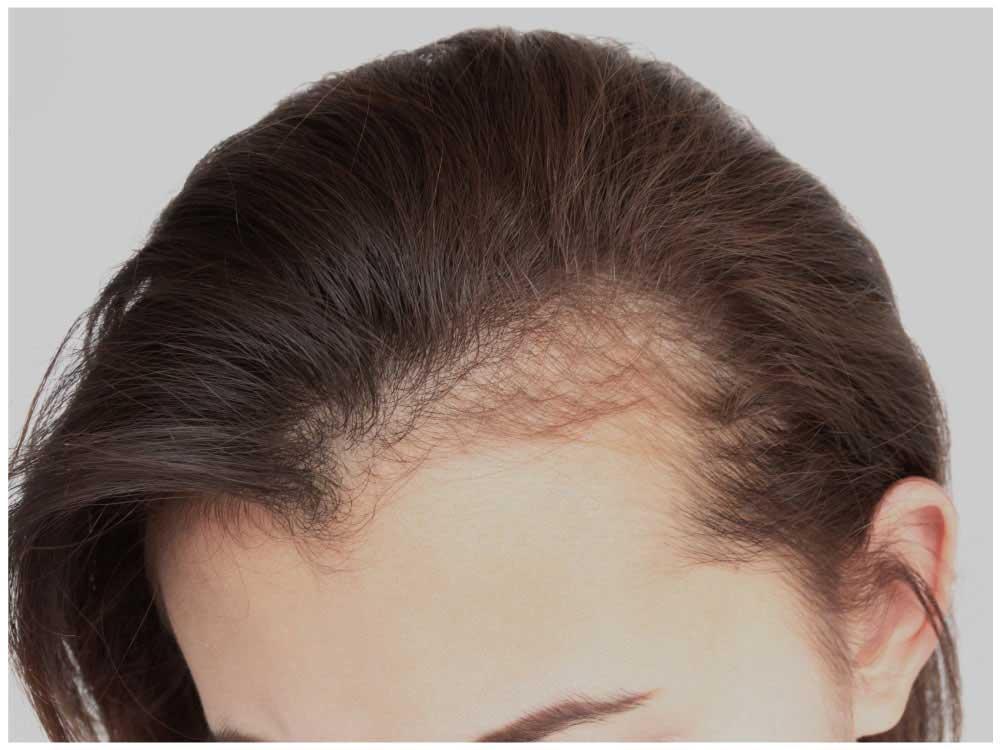 ریزش موی یک طرف سر