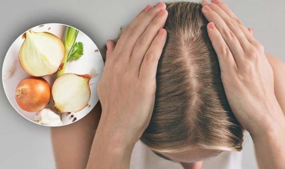 مزایای آب پیاز برای رشد مو