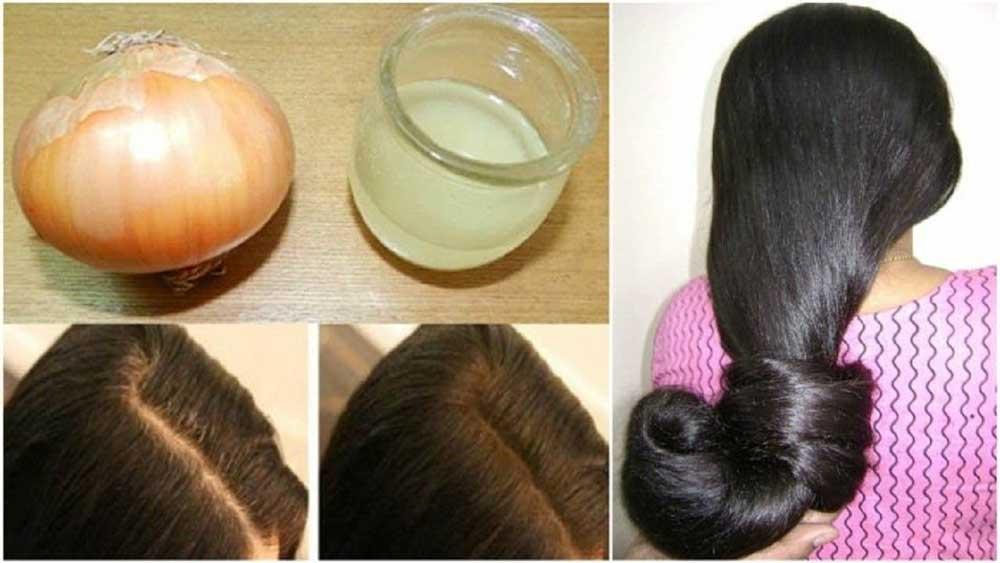 افزایش رشد موها با آب پیاز
