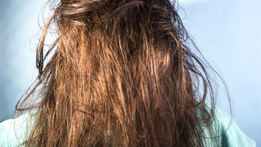 علت چرب شدن موهای شسته شده