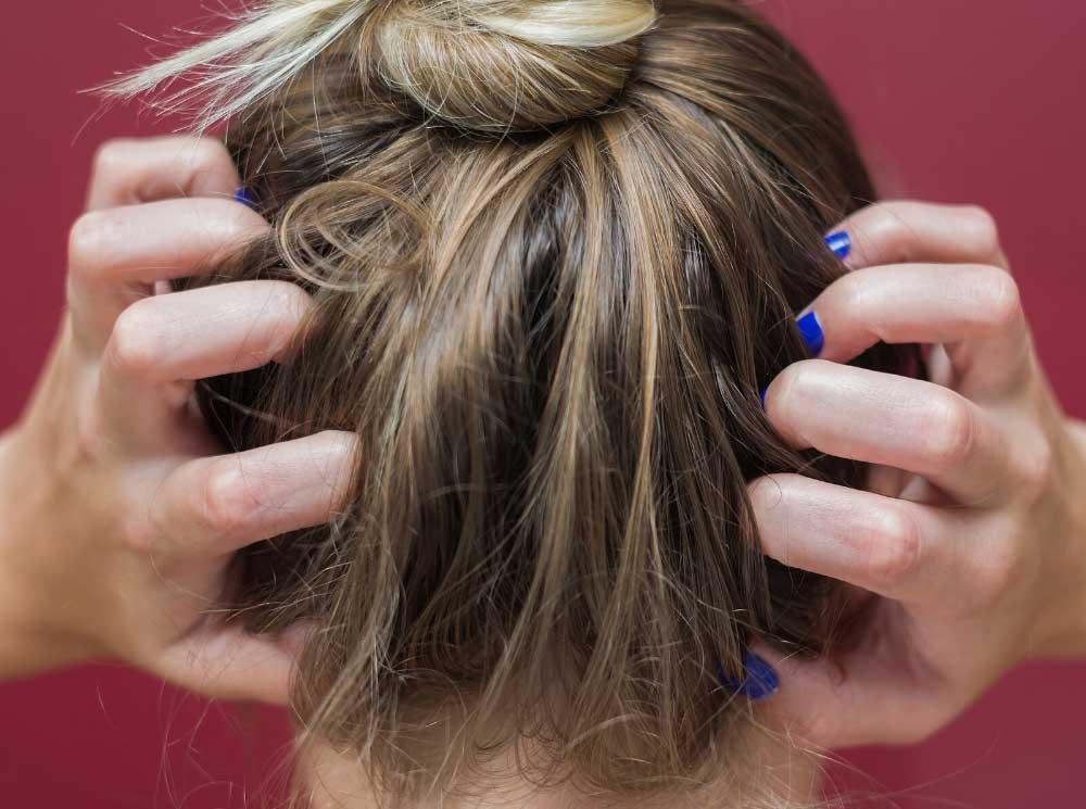 درمان خارش سر و ریزش مو