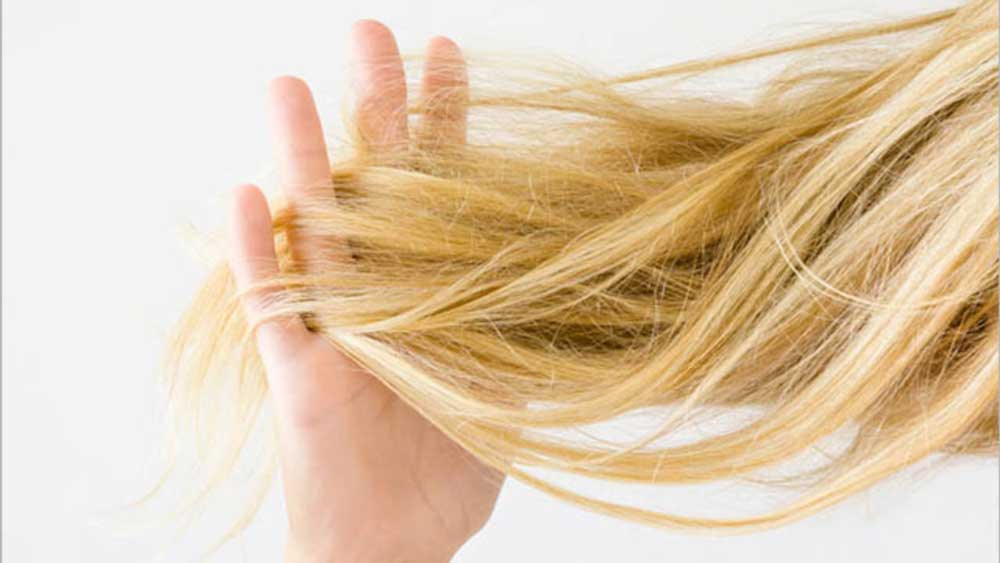 روش های درمان ریزش مو در زنان