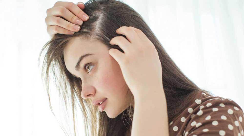 ریزش موی ارثی در زنان