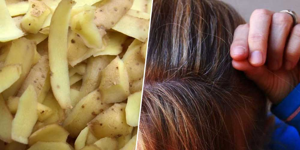 سیب زمینی برای شوره مو