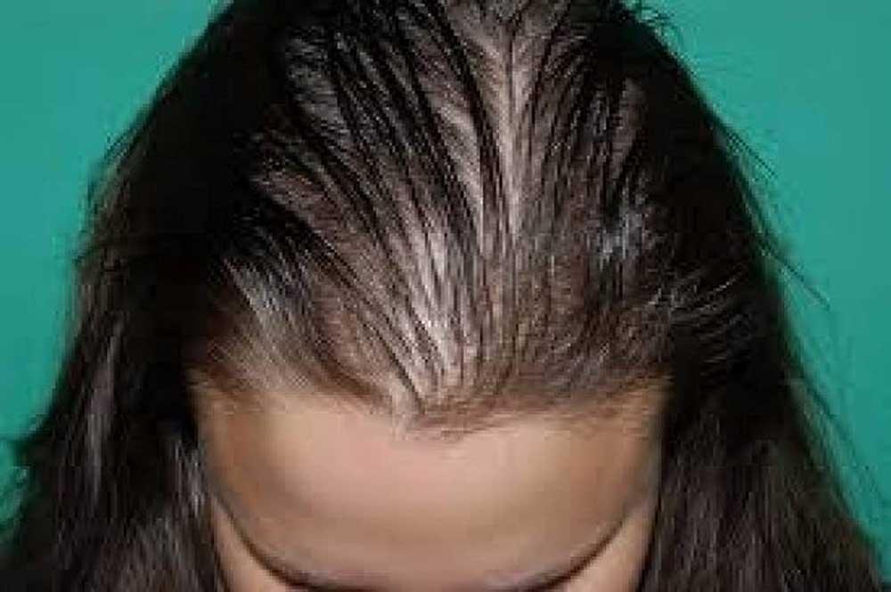 عوارض کربوکسی تراپی مو
