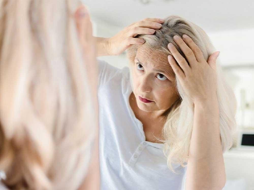 تاثیر رنگ مو در کاهش رنگدانه ها