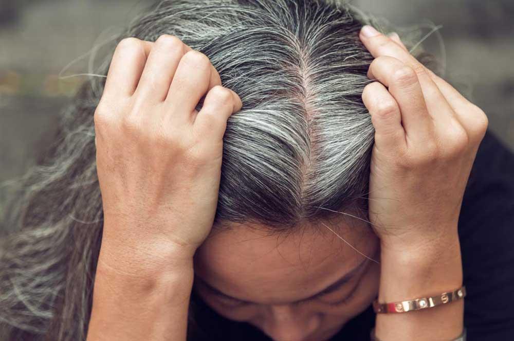 دلایل سفید شدن مو