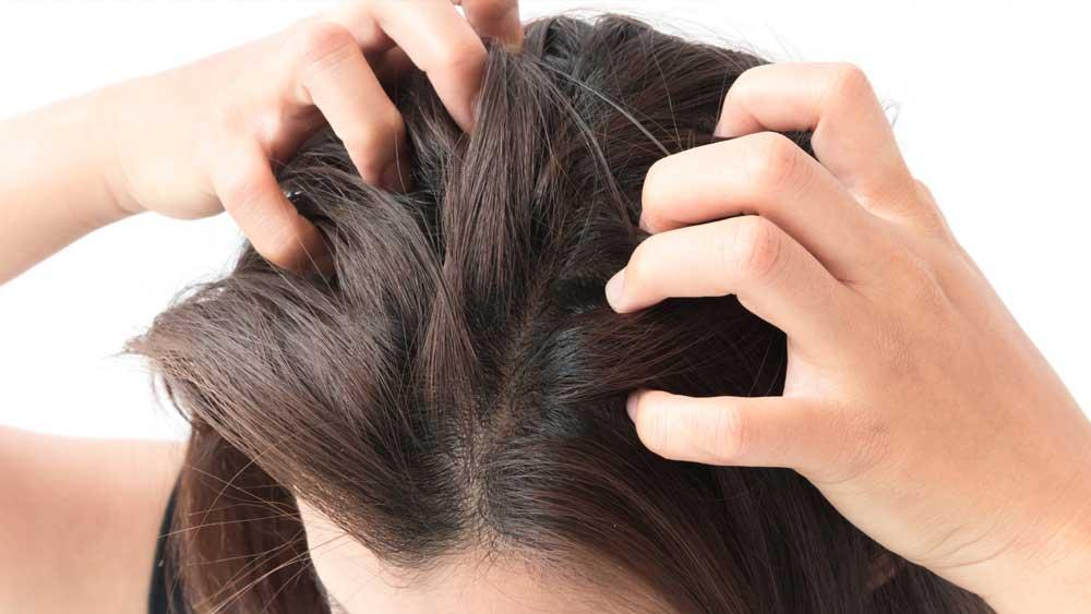 رفع خشکی پوست سر