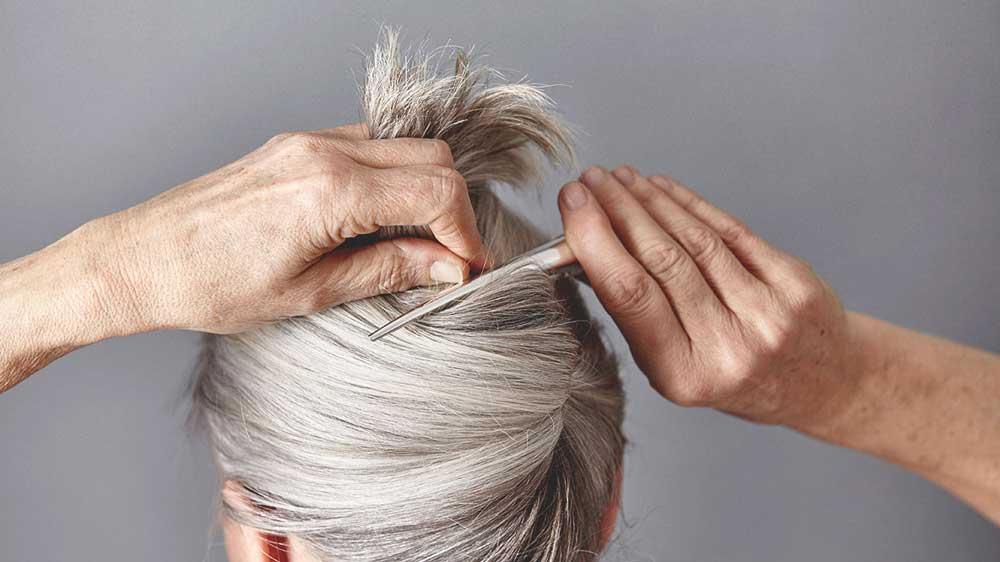 بیماری های مرتبط با مو