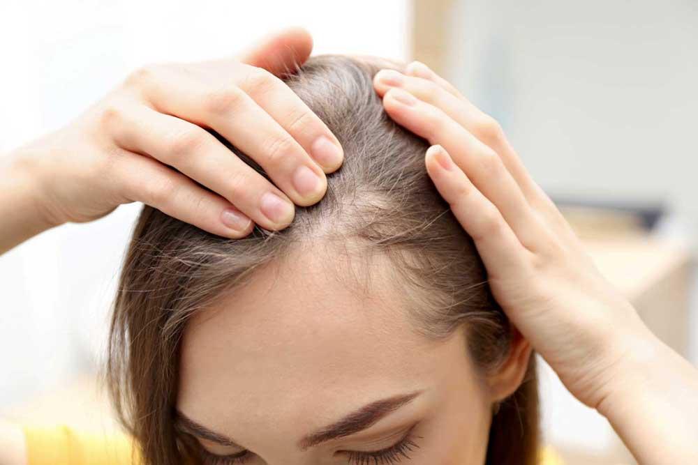 دلیل اصلی ریختن موهای سر