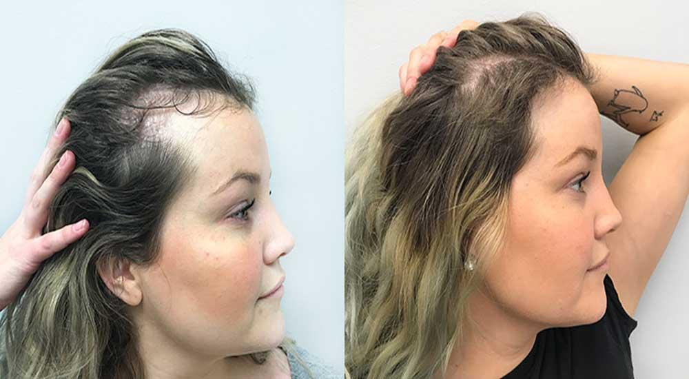 علل ریزش مو در زنان جوان