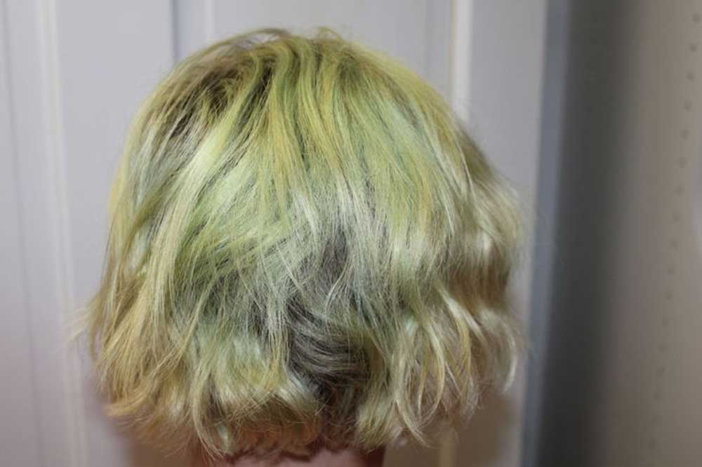 تراپی های تخصصی موهای آسیب دیده