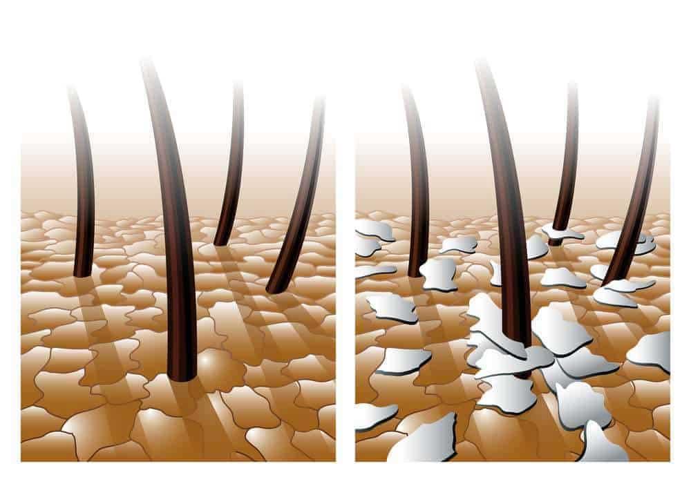 فرق شوره و پوسته سر