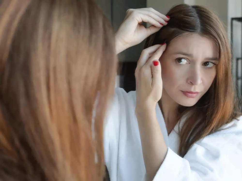 درمان ریزش موی هورمونی