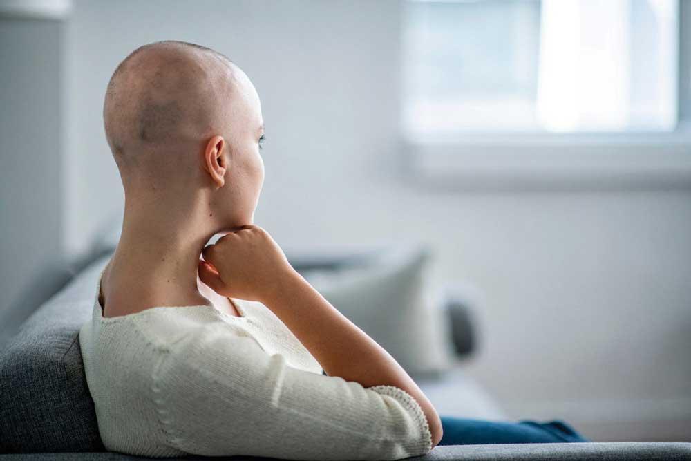 ریختن موها بعد از شیمی درمانی