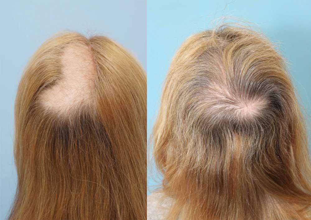 بیماریهای مرتبط با ریزش مو سکه ای