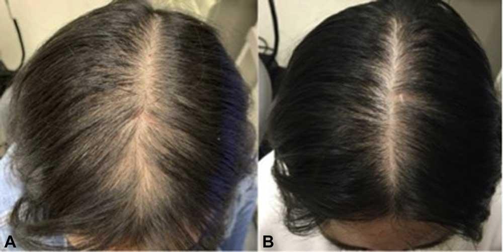 کاهش تراکم مو در زنان