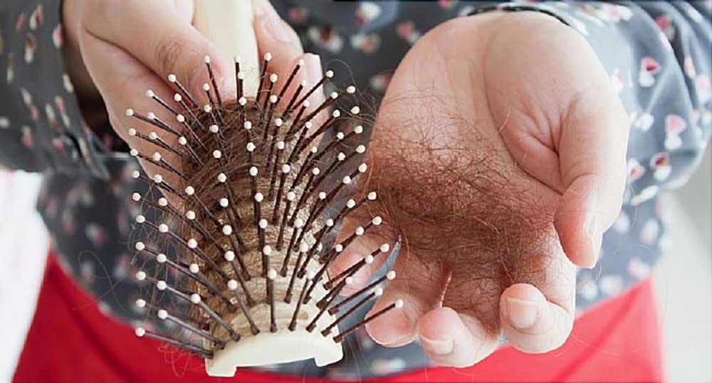 علت ریزش مو در کرونا