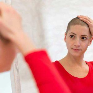 ارتباط ریزش مو و سرطان