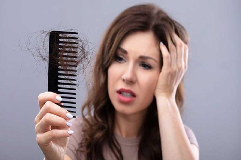 ریزش موی شدید در زنان