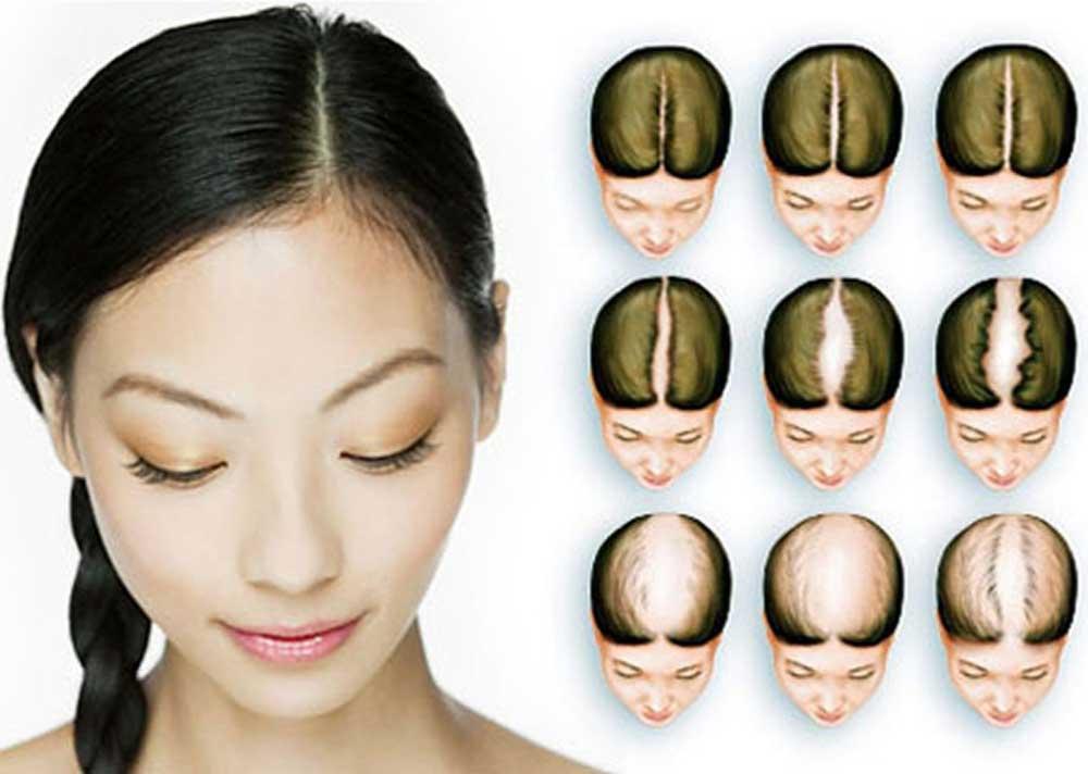 ماینوکسیدین در درمان ریزش موی زنان