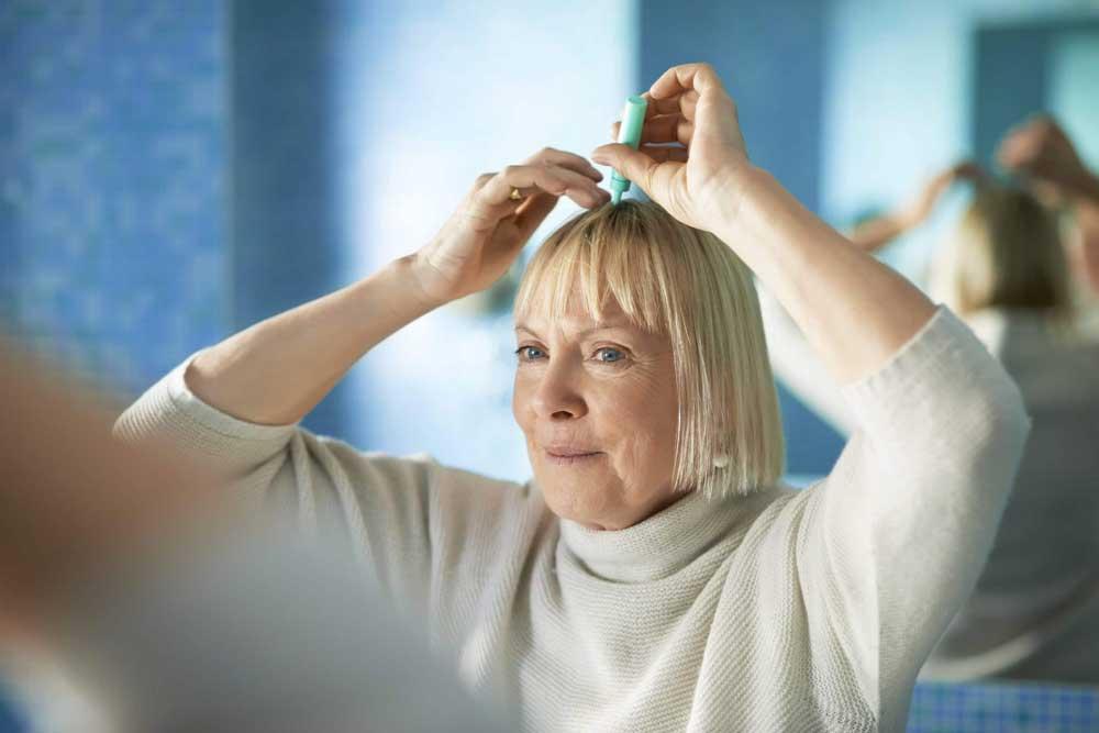 علت کم پشت شدن موی سر