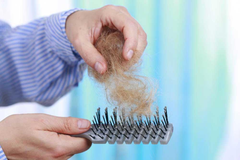 ریزش موی طبیعی