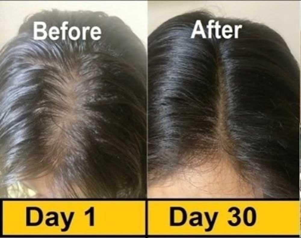 قبل از بعد از روغن درمانی